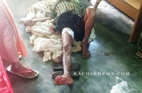 Tatmadaw Shelling Injures Civilians in Hpakant Township